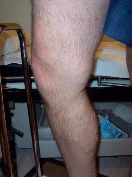 Gonfiore delle gambe – quando è il momento di agire?
